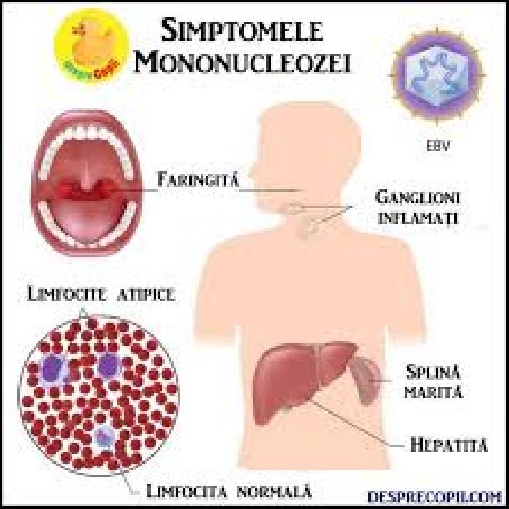 Mononucleoza infectioasa