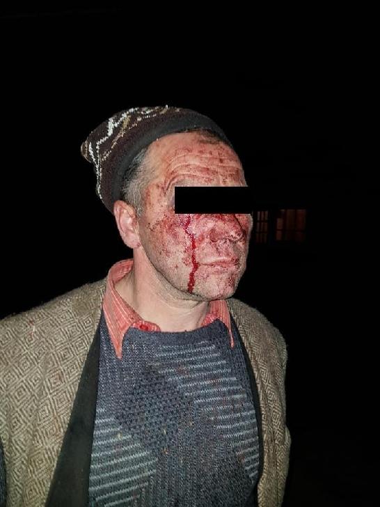 Un bărbat din Ştefeşti a fost bătut rău de un tânăr din localitate