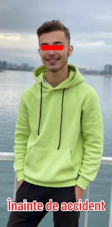 Un tânăr în vârstă de 16 ani, din Bucureşti, are nevoie de ajutor. Diagnostic crunt după un accident rutier